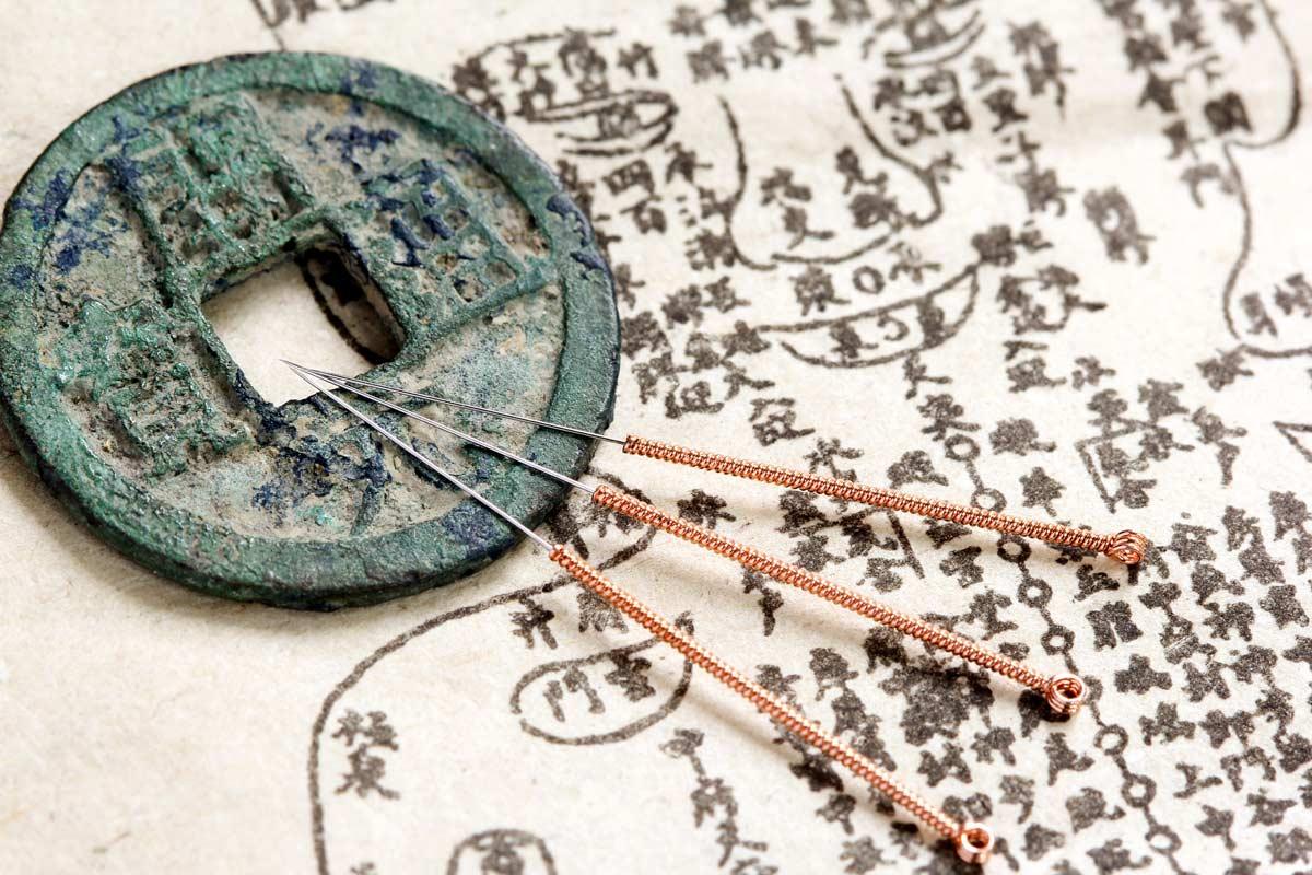 Akupunktur Bremen